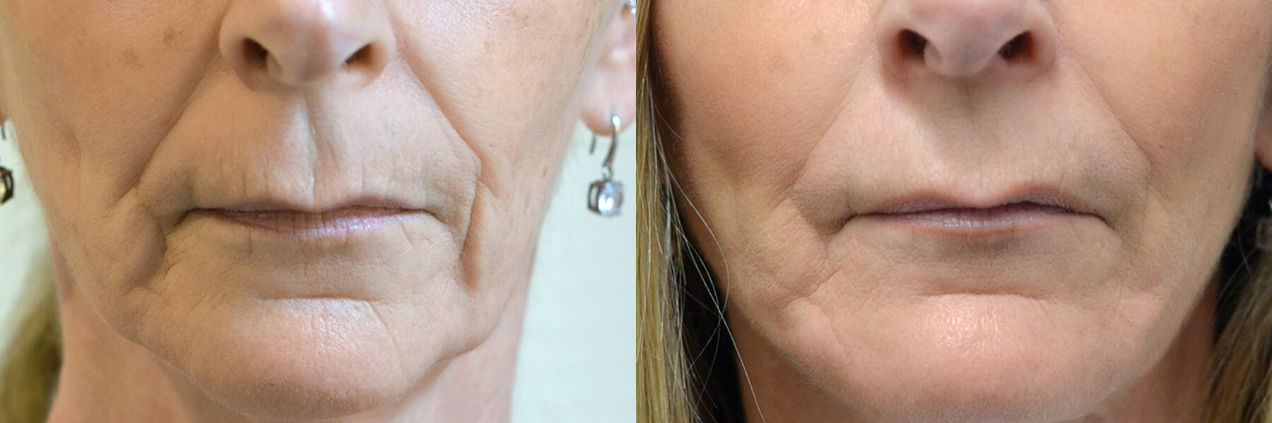 Fat grafting with nano fat stem cell technology before and after