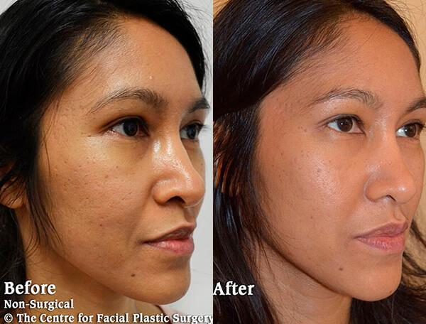 cheek filler enhancement - before after