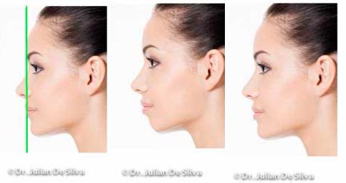 chin jawline filler enhancement