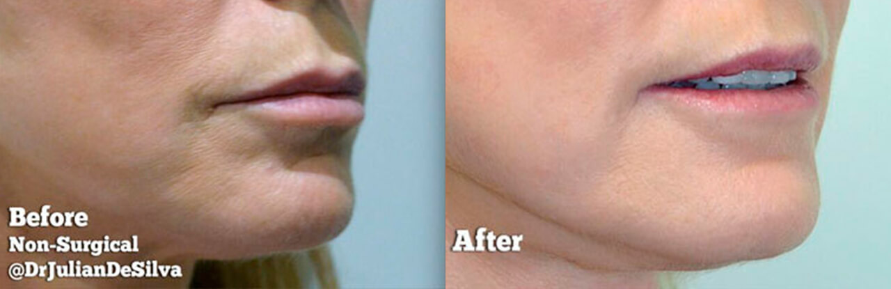 Anti-ageing laser treatments before and after