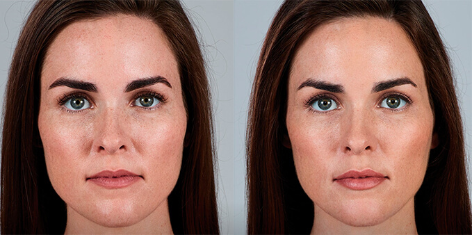 Non-surgical lip augmentation before and after