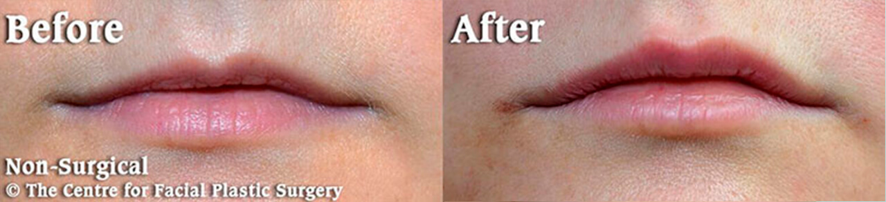 Non-surgical lip augmentation photo before and after
