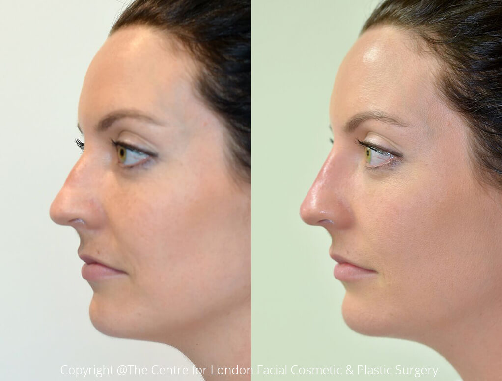 Non Surgical Rhinoplasty (Nose Job) Before & After