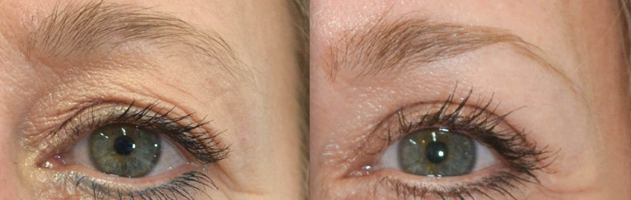 Signature laser resurfacing before and after