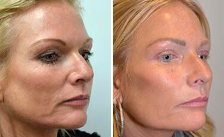 Non-surgical facelift photo before and after