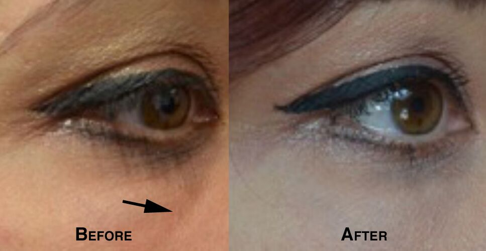 Fillers to treat under eye bags before and after