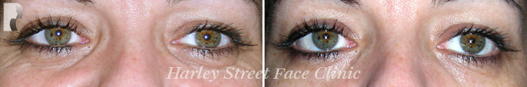 Botox treatment photo before and after