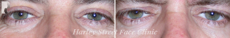 photo before and after Botox treatment