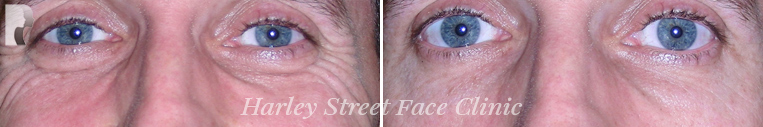 photos before and after Botox treatment