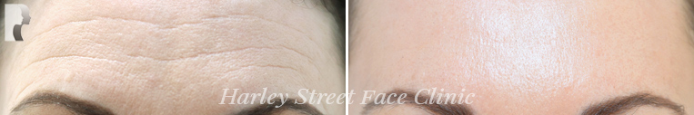 botox treatment before and after photos forehead