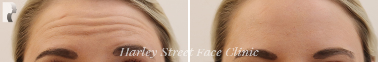 Forehead botox treatment before and after