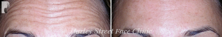 botox treatment Forehead before and after