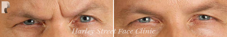 botox treatment before and after