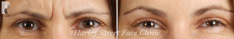 Forehead botox treatment before and after photo woman