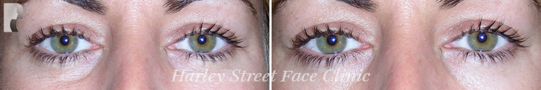 botox treatment under eye bags before and after photo woman