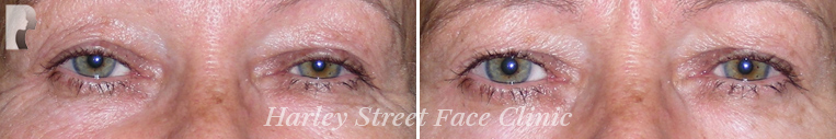 botox treatment before and after photo