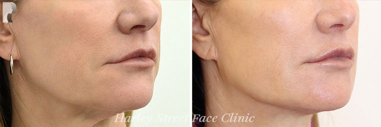 Non-surgical treatments Jaw before and after photo