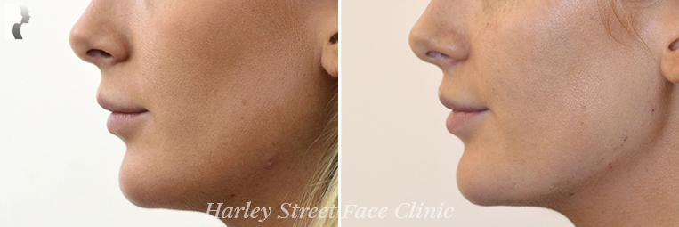 Non-surgical treatments Jawline before and after photo