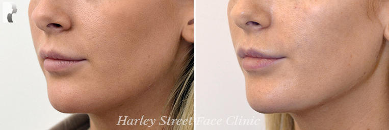 Non-surgical treatments Jawline and chin before and after photo