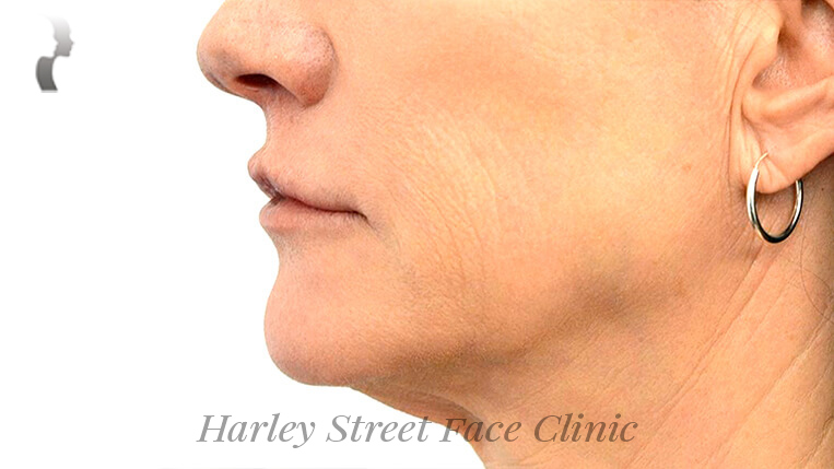 Non-surgical treatment Jaw Filler