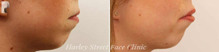 Non-surgical Laser treatments before and after photo