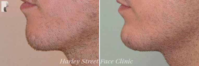 Chin Filler before and after photo