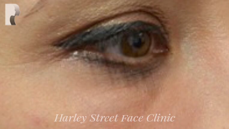 Non-surgical treatment of wrinkles under the eye