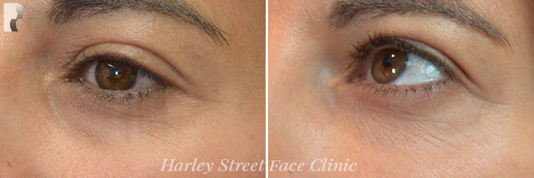 Non-surgical treatment of wrinkles under the eyes