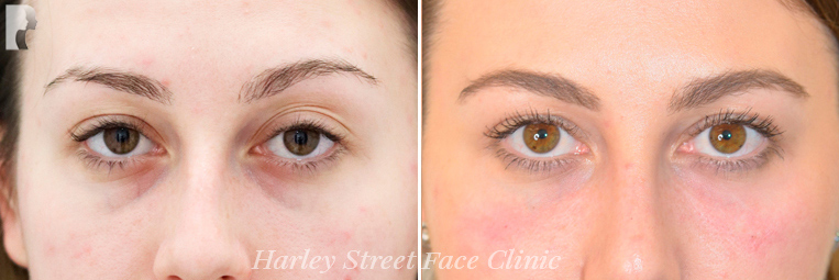 Non-surgical treatments under eye bags before and after photo