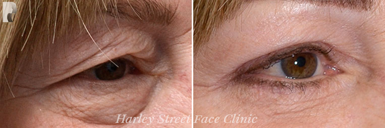 Skin Rejuvenation before and after photo