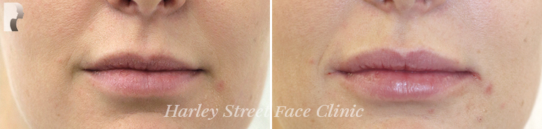 Non-surgical treatments lip before and after photo