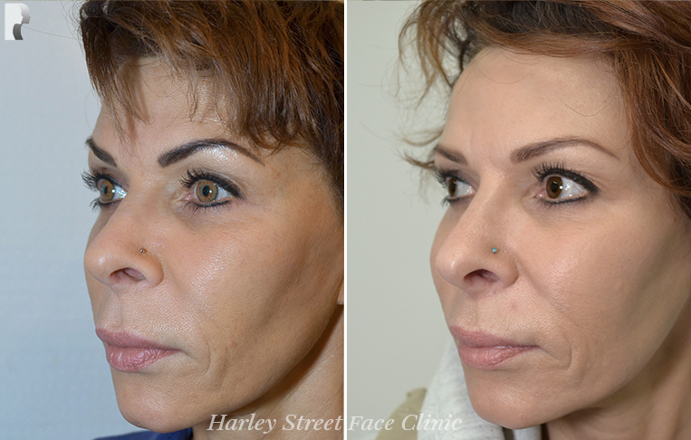 Signature Skin Rejuvenation before and after photo