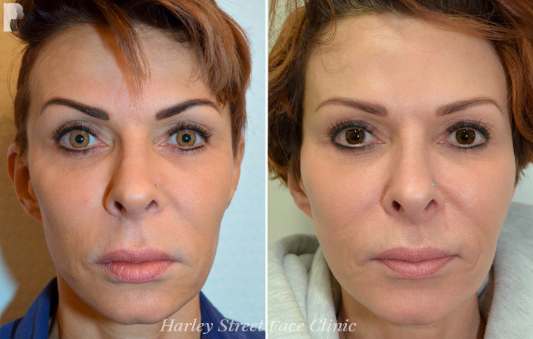 Non-surgical treatments before and after