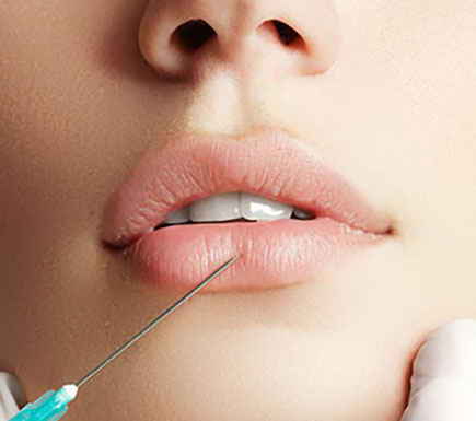 why have lip fillers at Harley Street Face Clinic