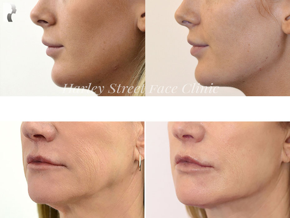 jawline contouring before after