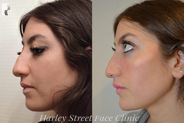 non-surgical facelift procedure