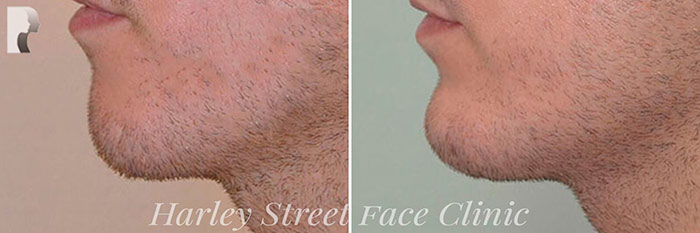 patient with chin and jawline fillers
