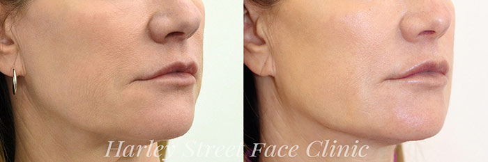 person with chin and jawline fillers