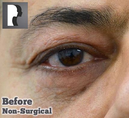 Male eye, before Tear Trough Filler treatment, front view, patient 1