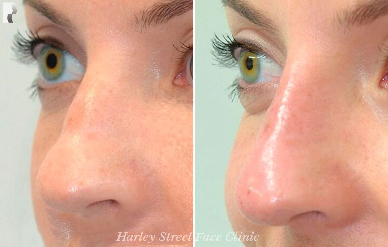Female nose, before and after Non-Surgical Rhinoplasty treatment, oblique view, patient 3