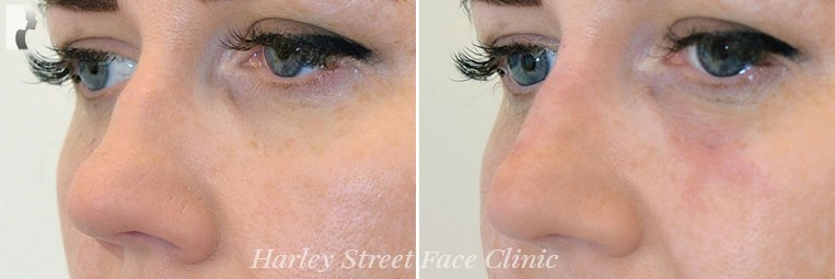 Female nose, before and after Non-Surgical Rhinoplasty treatment, oblique view, patient 2