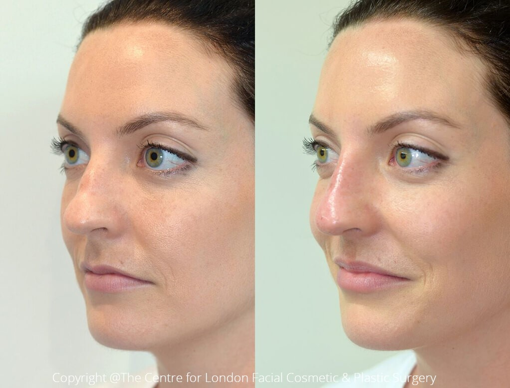 Female nose, before and after Lunchtime Nose Job treatment, oblique view, patient 2