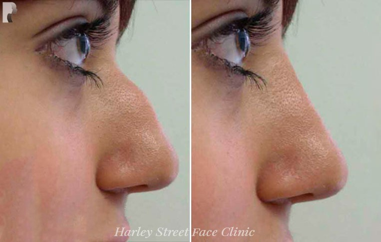 Female nose, before and after Non-Surgical Rhinoplasty treatment, side view, patient 1