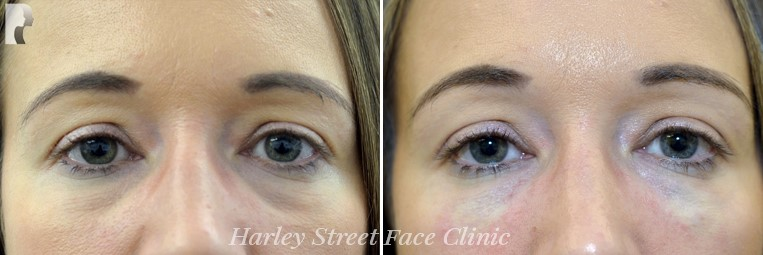 Female face, before and after Tear Trough Dermal Filler Treatment, front view, patient 1