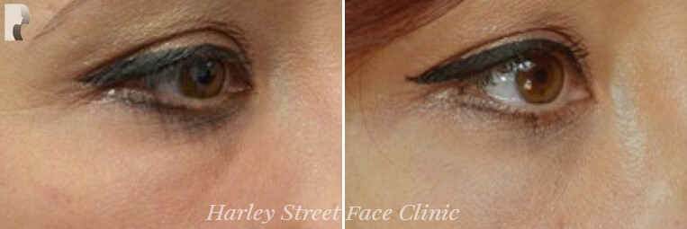 Female eye, before and after Tear Trough Dermal Filler Treatment, oblique view, patient 2