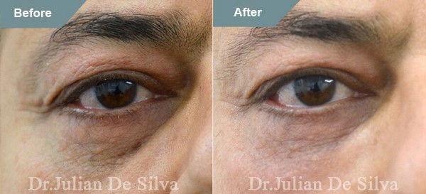 Male eyes, before and after Tear Trough Filler Treatment, front view patient 1