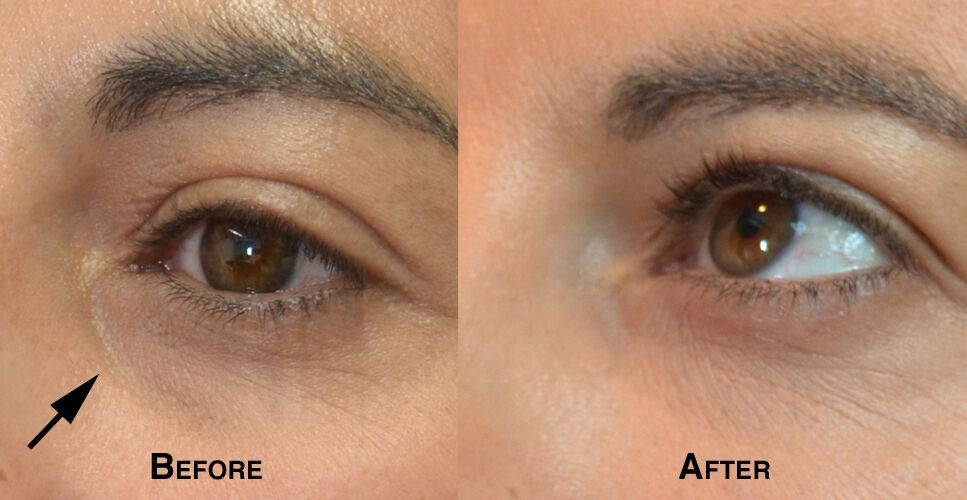 Female eye, before and after Tear Trough Filler treatment, oblique view, patient 2