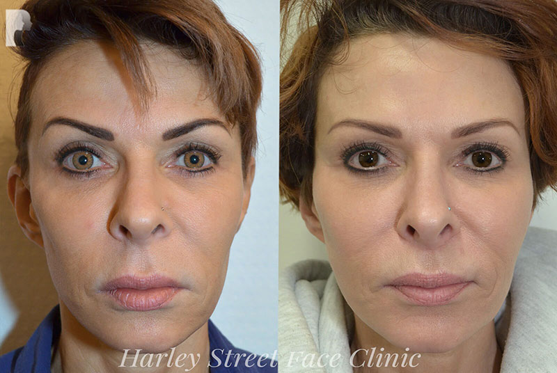Non Surgical Face Lift before and after photo