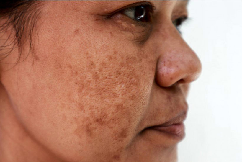 woman with brown spots on her cheeks
