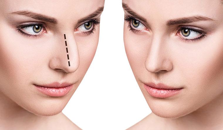 Non Surgical Nose Job Female